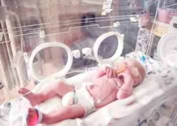 المغرب اليوم - ولادة طفل بحالة وراثية نادرة تمنعه حتى من البكاء