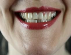المغرب اليوم - تحسين صحة الفم يقلل حدة أعراض كورونا